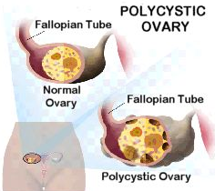 Easy Tips How To Get Pregnant With PCOS